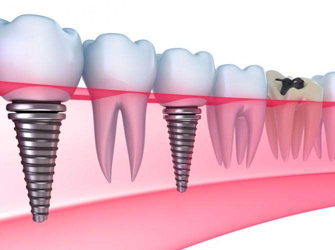 implantatsiya-zubov-kiev