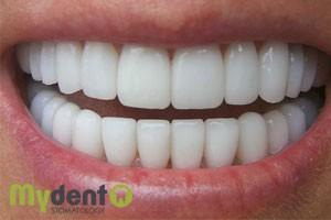 diagnostika-zubov-online-3