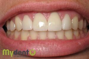 diagnostika-zubov-online-5