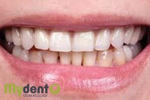 diagnostika-zubov-online-6