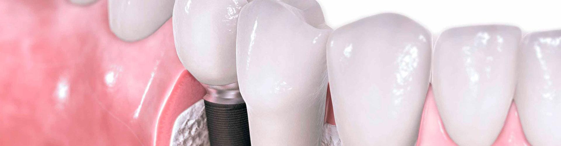 Імпланти - зуби на все життя