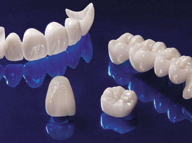 Цирконієві коронки на зуб
