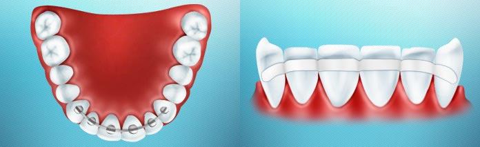 шинування зубів