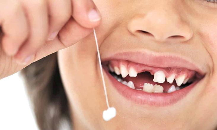лікування молочних зубів